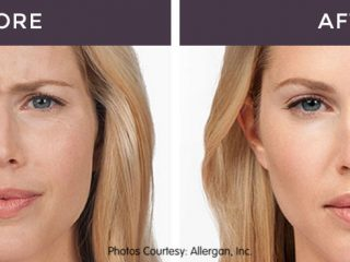Anti Wrinkle Injectable treatment Before and After images