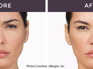Anti Wrinkle Injectable Before and After