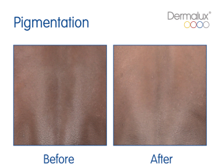 Dermalux Before and After