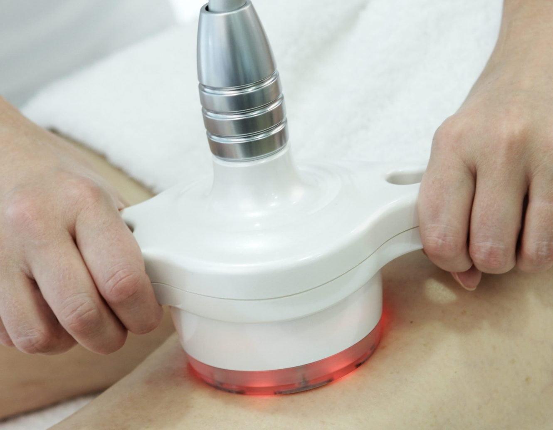 Laser Cellulite Treatment