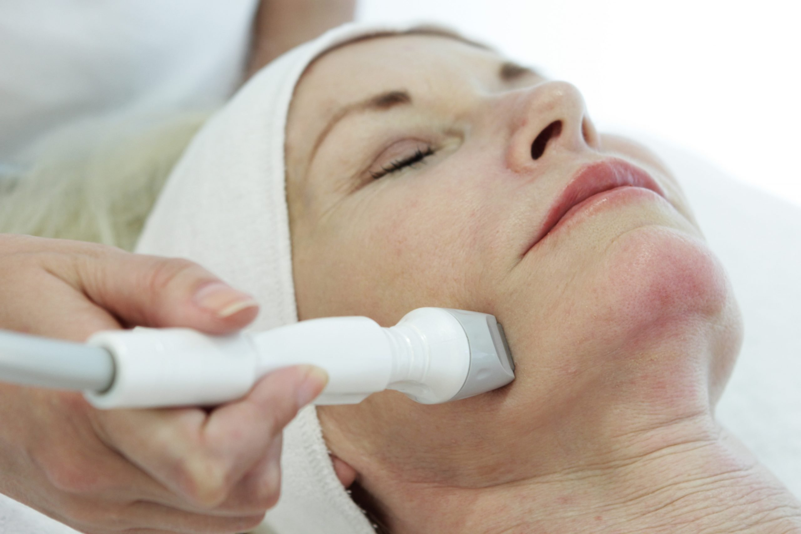 Radio Frequency Skin Lifting Treatment