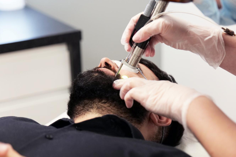 Laser Hair Removal for Men's Beards