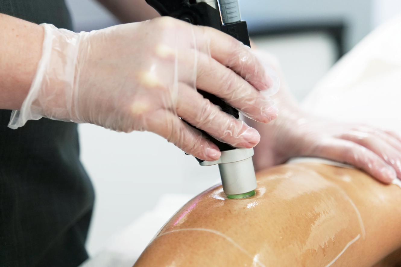 Pain-free Laser Hair Removal on Legs
