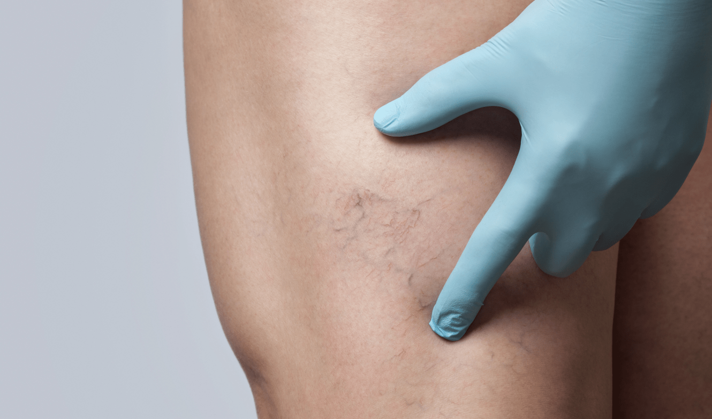 Laser Leg Vein Removal