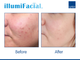 illumiFacial photofacial Before and After Results