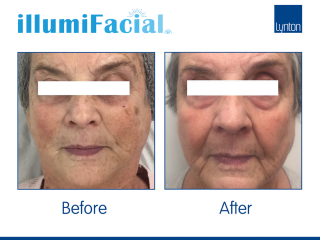 illumiFacial photo facial Before and After Results