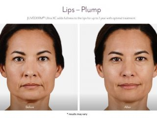 Facial Fillers Before and after images