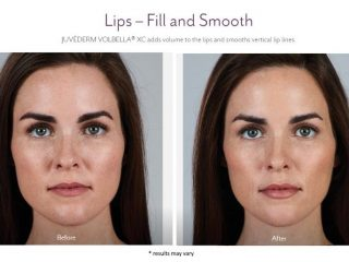 Facial Filler Before and after images