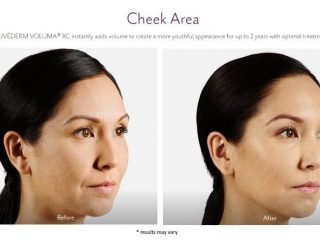Facial Fillers and injectables Before and after images