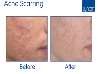 Resurface before and after results