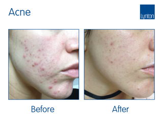 IPL Acne treatment Before and After with the Lynton Excelight