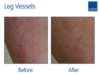 IPL Leg Vessel treatment Before and After with the Lynton Excelight