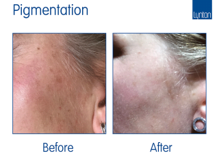 IPL Pigmentation treatment Before and After with the Lynton Excelight