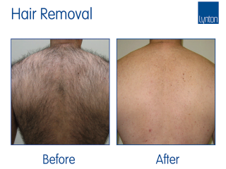 IPL Hair Removal Before and After with the Lynton Excelight