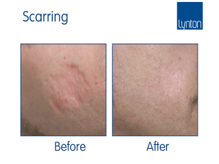 SmartXide CO2 Before and After Results for Laser Skin Resurfacing