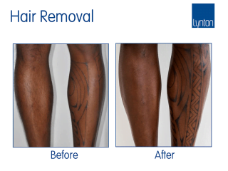 Laser hair removal on dark skin before and after with the Motus AY