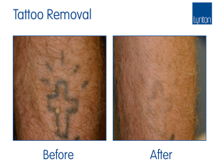 Laser Tattoo Removal Before and After with the Luminette Q