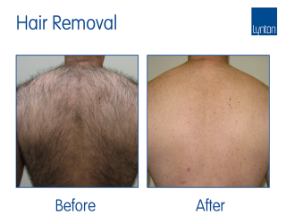 Lumina Laser Treatment Before and After Result