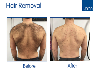 Laser hair removal before and after with the Motus AY