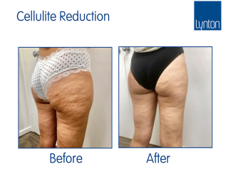 Onda Coolwaves Treatment before and after results for cellulite, fat reduction and skin tightening