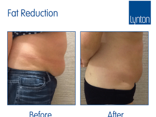 Promax Lipo Treatment before and after results for cellulite, fat reduction and skin tightening