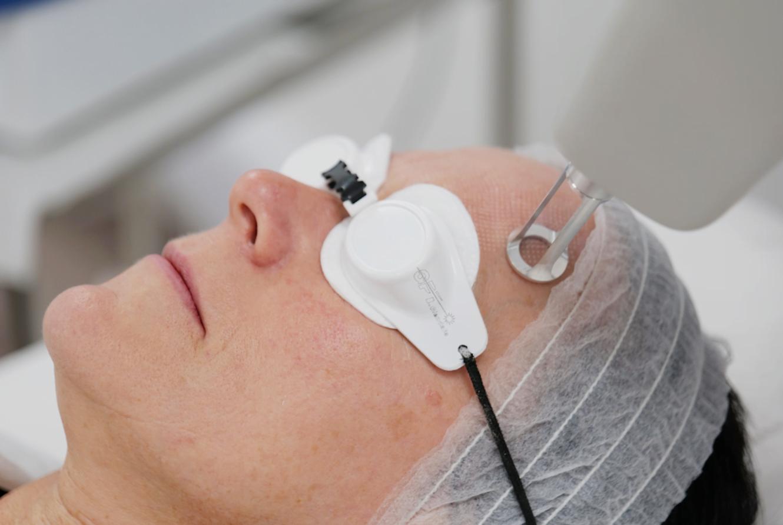 3JUVE treatment in action Skin Rejuvenation