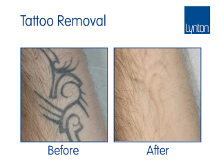 Laser tattoo removal before and after with the Synchro QS4