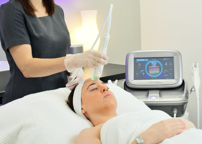 Radiofrequency microneedle treatment