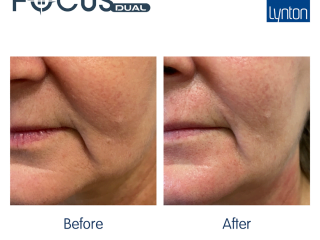 Focus dual HIFU Facial before and after