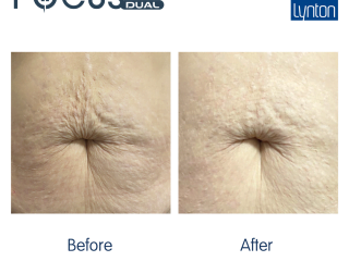 focus dual treatment Before and After