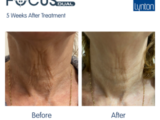 focus dual radiofrequency microneedle Facial & Neck Lift